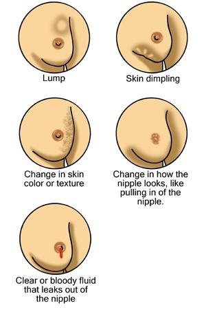 sår på bröstet bröstcancer